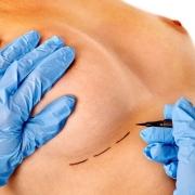 lipofilling mamario - aumento de mamas