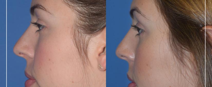 Images - Estetica facial aumento de menton