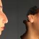 Simulación con Vectra H1 del antes y después de una rinoplastia