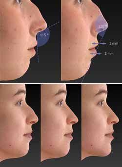 rinoplastia simulacion antes y despues