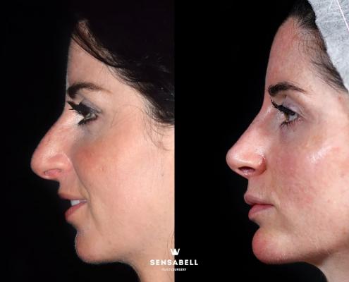 Rinoplastia ultrasónica antes y después