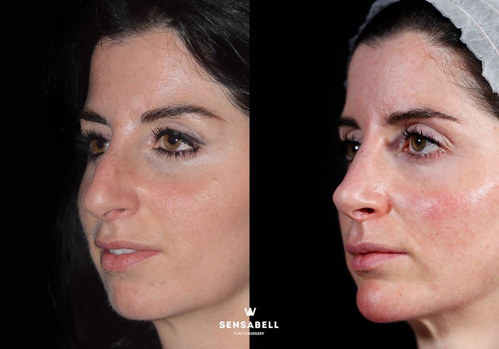 Rinoplastia ultrasónica antes y después lateral