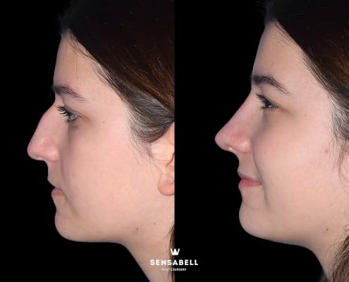 Caso clínico rinoplastia perfil